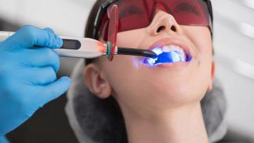 Лучшие методики отбеливания зубов